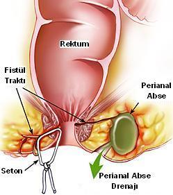 perianal-fistur