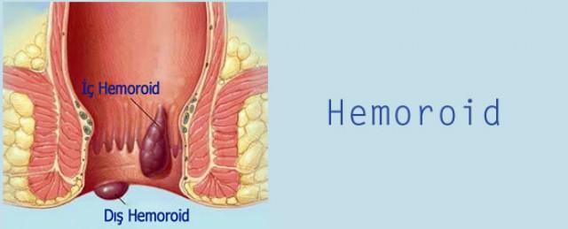 HEMOROİD